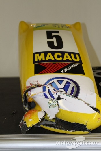 Broken nose from Felipe Nasr's car