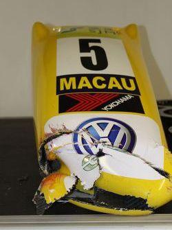 Broken nose from Felipe Nasr's car